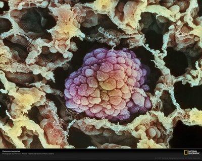 Nuevas perspectivas en tumores cancerosos